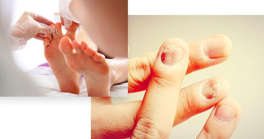 Nail Pitting (Rổ móng tay): Khái niệm, triệu chứng và cách điều trị.